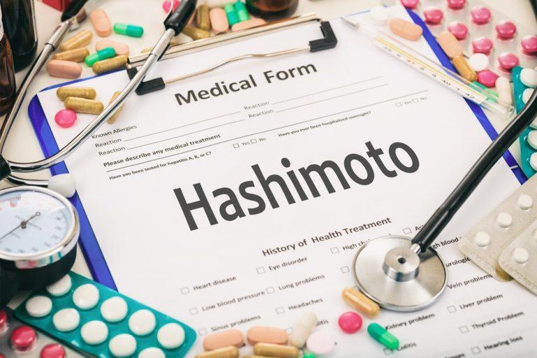 Bevor du feststellst, dass du alles gemacht hast und es immer noch keine Effekte gibt (Hashimoto)